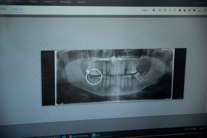 Mouth xray with broken teeth